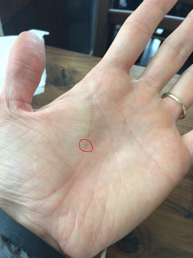 CJ's left hand